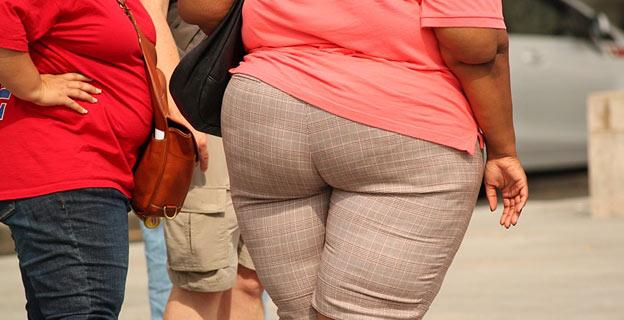 obesity dna